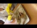 Анатомия. Соединения костей верхней конечности.