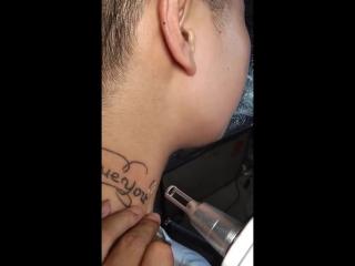 Лазер для удаления тату Карбоновый пилинг Лазерная указка