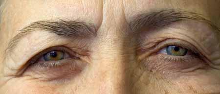 Псевдоэксфолиация глаукомы. Глаза