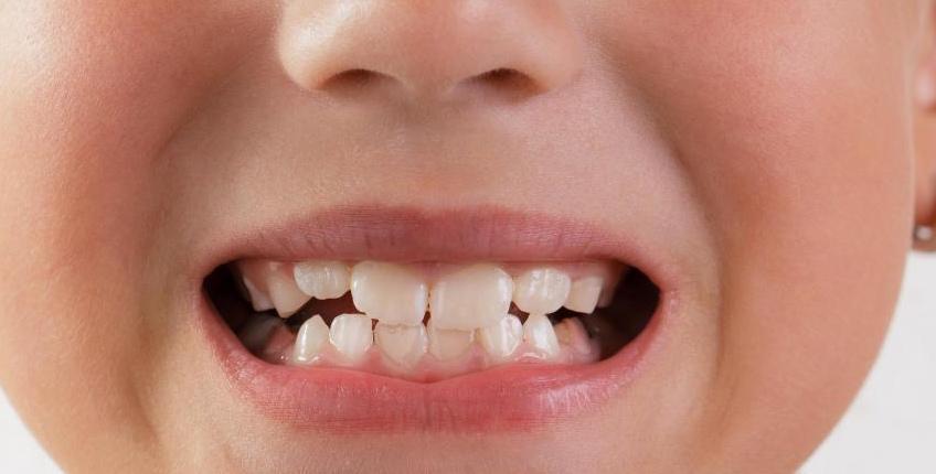 Молочные зубы, которые не выпадают, как ожидается, могут привести к неправильному прикусу.