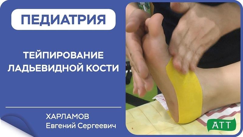 Тейпирование стопы при плоскостопии Ладьевидная кость. Ортотейпинг. Харламов Е.С.