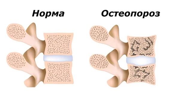 Остеопороз у детей с особенностями развития, изображение №3