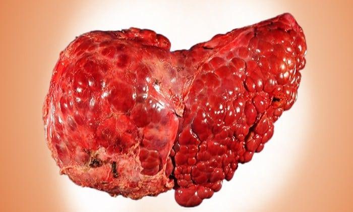 Что такое антигены гепатита В?
