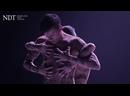 Thin Skin - Marco Goecke NDT 1 - Strike Root