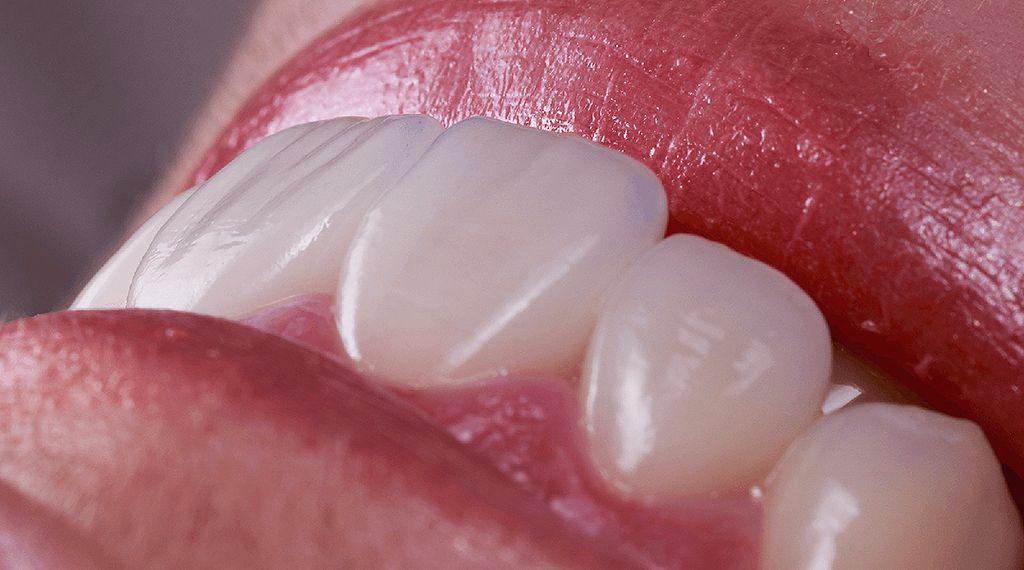 Сколько стоит зубной имплантат?