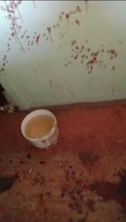 Ярославцев напугал залитый кровью подъезд: что произошло